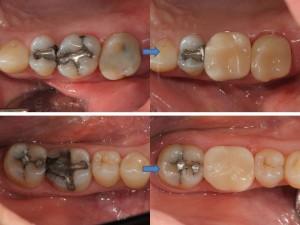 My Teeth Cavities